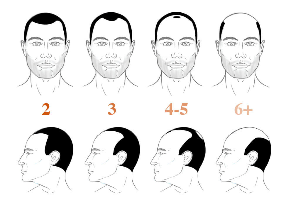 The Norwood-Hamilton hair loss scale
