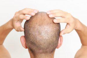A man giving himself a scalp massage